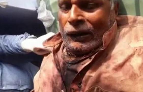 हैवानियत : पहले पिता की गर्दन काटी, फिर FeviKwik से चिपकाने लगा