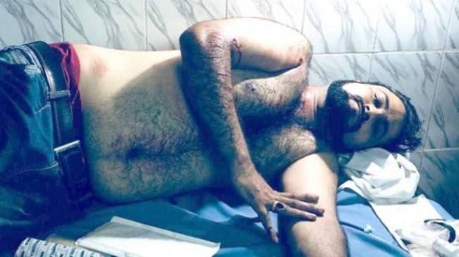 डॉ. कफील खान के भाई को बदमाशों ने मारी गोली, हालत गंभीर