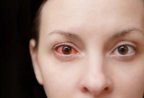 तपती गर्मी और धूप में त्वचा के साथ रखें आंखों का भी खास ख्याल