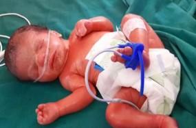 अजब-गजब, राजस्थान के नागौर में हुआ दुर्लभ कोलोडियन बच्चे का जन्म