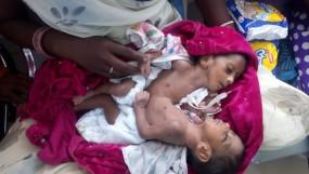 पेट से जुड़े जुड़वा बच्चों को लेकर जब जनसुनवाई में पहुंचे माता-पिता