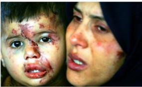Fake News: कश्मीर की बताकर सोशल मीडिया पर पीड़ित महिला की फोटो वायरल ?
