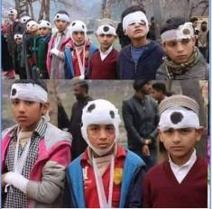 Fake News: चोटिल बच्चों की तस्वीर कश्मीर की बताकर वायरल ?