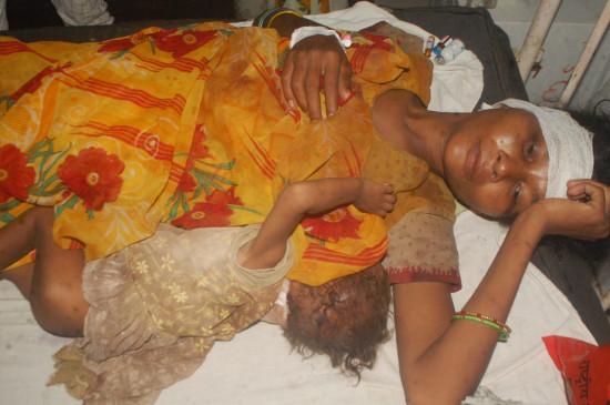 पत्नी के साथ दुधमुंही बेटी पर कुल्हाड़ी से कातिलाना हमला - दोनों की हालत गंभीर