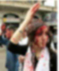 Fake News: खून से लथपथ महिला की तस्वीर कश्मीर की बताकर वायरल