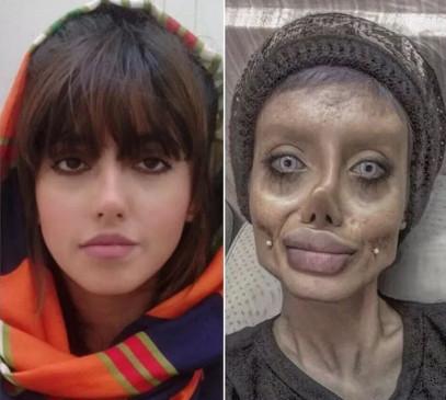 Photo: एंजेलिना जॉली बनने सर्जरी से चेहरा किया बर्बाद, अब खाएगी जेल की हवा