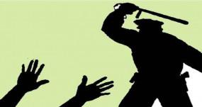 पुलिस लॉकअप में प्रताड़ना के मामले में डीसीपी को हलफनामा दायर करने का निर्देश