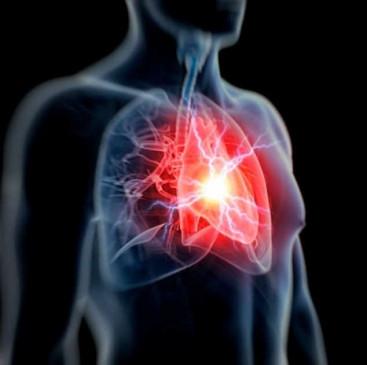 भारत में वायू प्रदूषण से दिल की बीमारी का खतरा