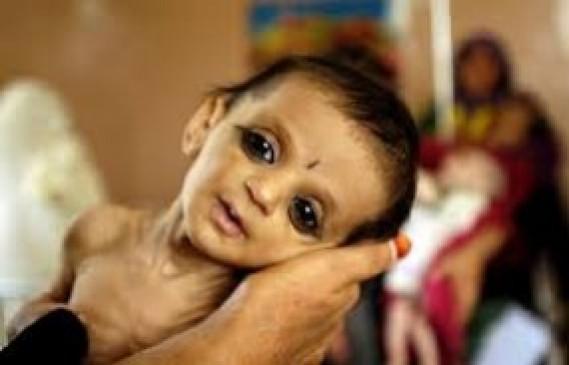 मेलघाट कुपोषण मौत मामले में हाईकोर्ट तल्ख, कहा - जिस इलाके का सीएम, वहां बच्चों का यूं मरना शर्मनाक