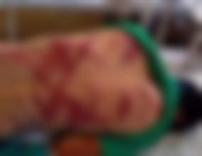 Fake News: क्या जेएनयू छात्र की हुई बेरहमी से पिटाई ?