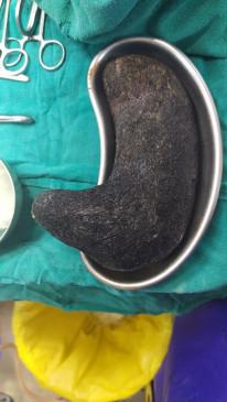 छिंदवाड़ा में 14 साल की लड़की के पेट से निकले ढाई किलो बाल