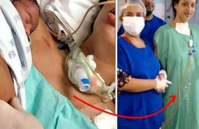 ब्राजील में एक महिला ने कोमा में दिया बच्चे को जन्म, जानें फिर आगे क्या हुआ