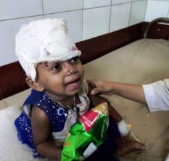 Fake News: क्या भारतीय मुसलमानों के पत्थरबाजी से घायल हुई छोटी बच्ची?