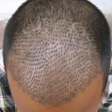 बालों के प्रत्यारोपण में लापरवाही बरतनेवाले डॉक्टर के खिलाफ आपराधिक मामला दर्ज