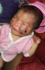 मासूम को आग से सेंका, हालत गंभीर, कारनाम खन्नौधी प्राथमिक स्वास्थ्य केन्द्र का