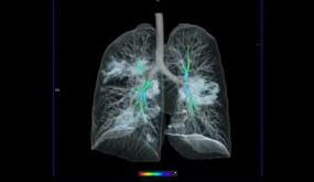 COVID-19: कोरोनावायरस से संक्रमित फेफड़े की पहली 3D तस्वीर आई सामने, देखते ही सहमी दुनिया