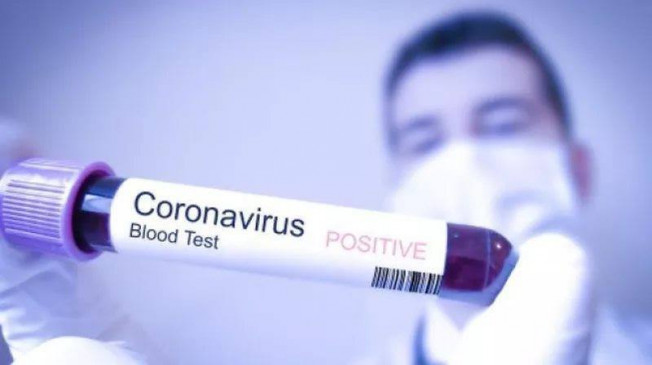Coronavirus Outbreak: महिलाओं के मुकाबले पुरुष अधिक हो रहे संक्रमित, आंकड़ों से सामने आई जानकारी