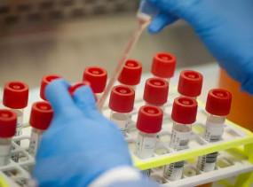 COVID-19: रैपिड एंटीबॉडी टेस्ट किट के इस्तेमाल पर रोक, इस वजह से लिया गया फैसला