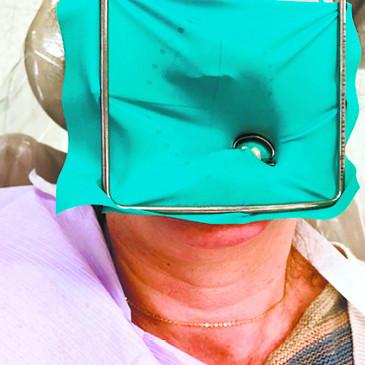 कोरोना से बचाव: डेंटल में रबर डैम तकनीक का उपयोग, बढ़ सकता है खर्च