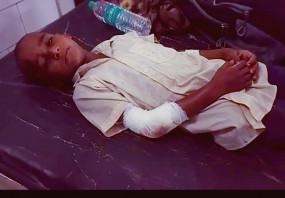 डायनामाईट कैप्सूल के फटने से 10 वर्षीय बालक घायल