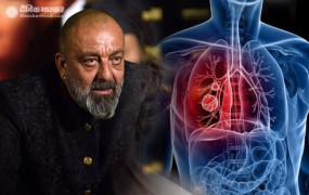 Lung Cancer: एक्टर संजय दत्त को फेफड़ों का केंसर, इलाज के लिए अमेरिका रवाना होंगे