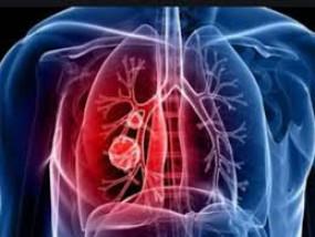 लगातार बढ़ रहे कैंसर के मामले, सर्वे रिपोर्ट में खुलासा