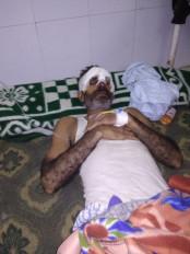उमरिया में बाघ के हमले में युवक घायल - बफर जोन धमोखर रेंज की घटना