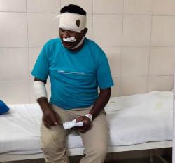 छिंदवाड़ा/सौंसर: जामलापानी में पुलिस पर हमला, टीआई की हालत गंभीर