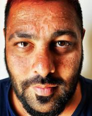 मालदीव में छुट्टियों के बीच सनबर्न का शिकार हुए बादशाह