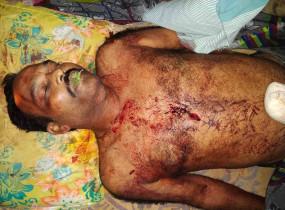 तेलंगाना में नक्सलियों ने टीआरएस कार्यकर्ता की हत्या की