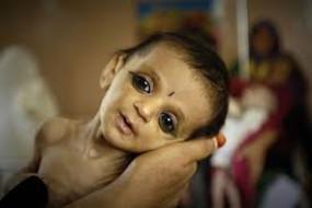 महाराष्ट्र के बीड में बढ़ रही है कुपोषित बच्चों की संख्या, ठोस कदम उठाने की जरूरत