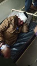 ओवरलोड यात्रियों से भरी बस पलटी, 7 लोग घायल