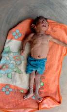 उमरिया में मिला अतिकुपोषित बच्चा, पोषण पुर्नवास केन्द्र नहीं मिला भरपेट भोजन ,घर लौट आई मां