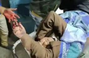 पश्चिम बंगाल: मुर्शिदाबाद में श्रम राज्य मंत्री जाकिर हुसैन पर बम से हमला, गंभीर हालत में कोलकाता रेफर