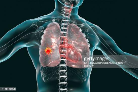 मुख ही नहीं, फेफड़ों, श्वास नली और स्तन कैंसर में भी जिम्मेदार है तंबाकू