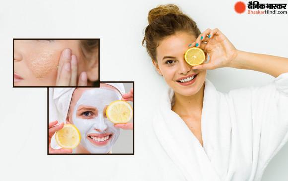 चेहरे पर करें नींबू का इस्तेमाल, मिलेंगे ये 3बेहतरीन फायदें