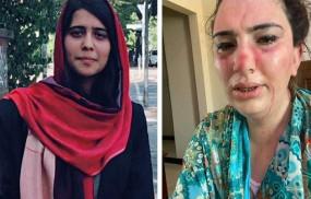 अफगानिस्तानी राजदूत की बेटी के साथ मारपीट, जानिए क्या है वायरल हो रही इस तस्वीर का सच
